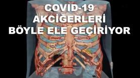 Koronavirüs ciğerleri böyle ele geçiriyor