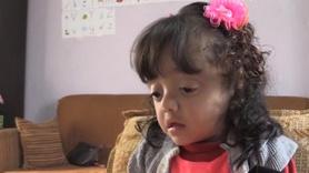 Cam kemik hastası İlknur'un azmi