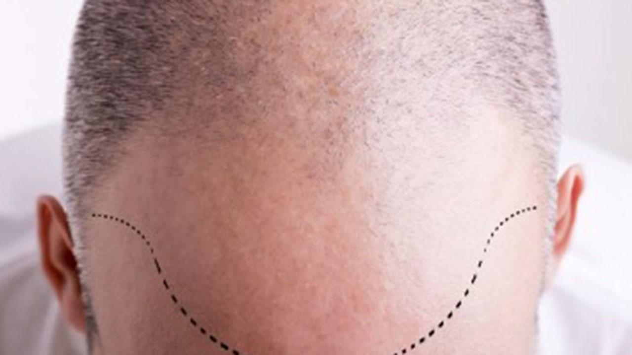 Saç dökülmesinde yeni tedavi yöntemi: Saç simülasyonu