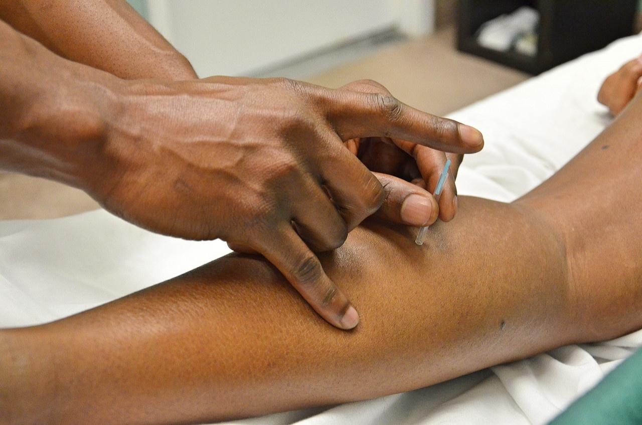 akapunktur nedir, faydaları