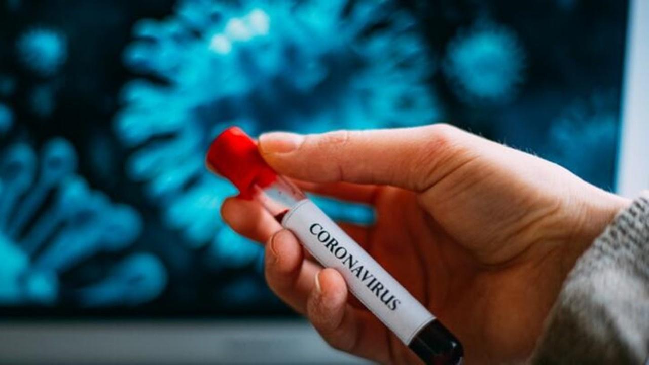 Korona testi PCR nerede yapılır? Fiyatı ne kadar?
