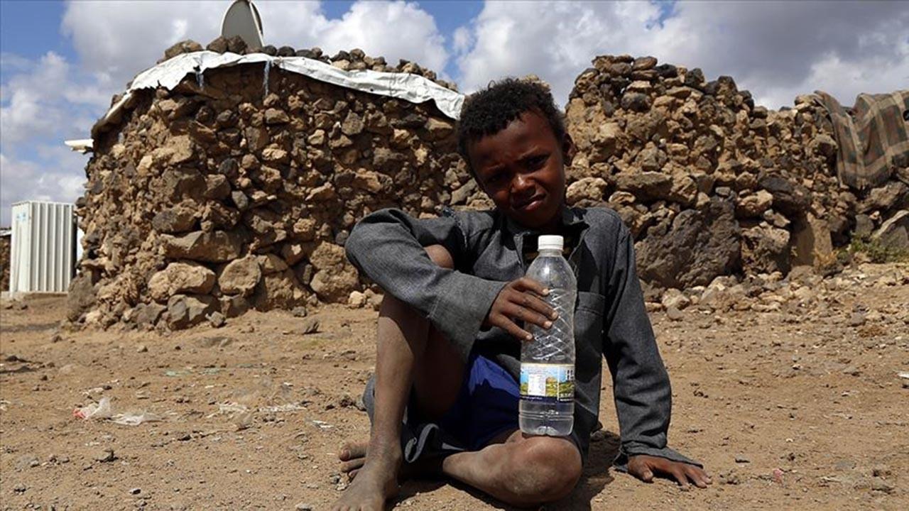 Yemenlilerin yüzde 7'i açlıkla karşı karşıya