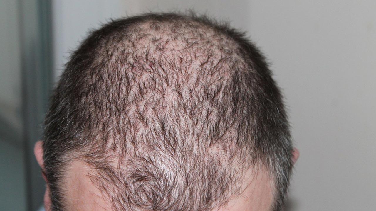Saç neden dökülür, saç dökülmesi sebepleri neler?