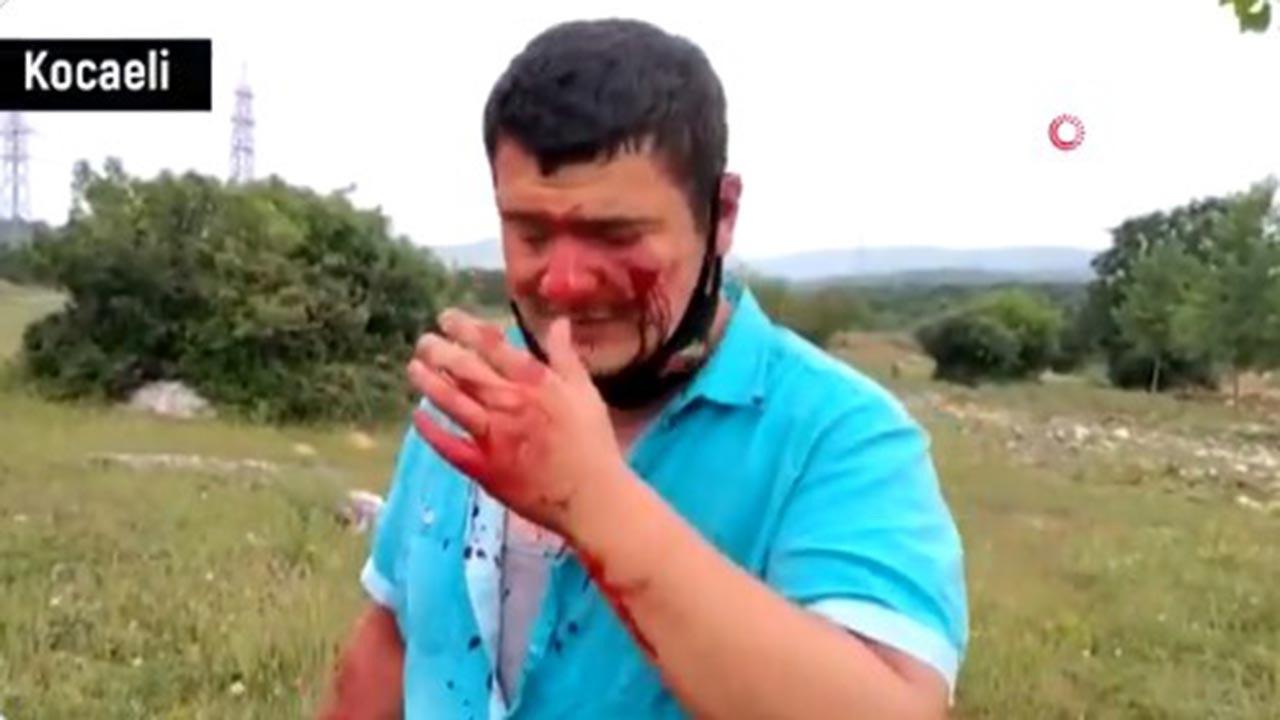 Türkkan'ın korumaları gazeteciye saldırdı