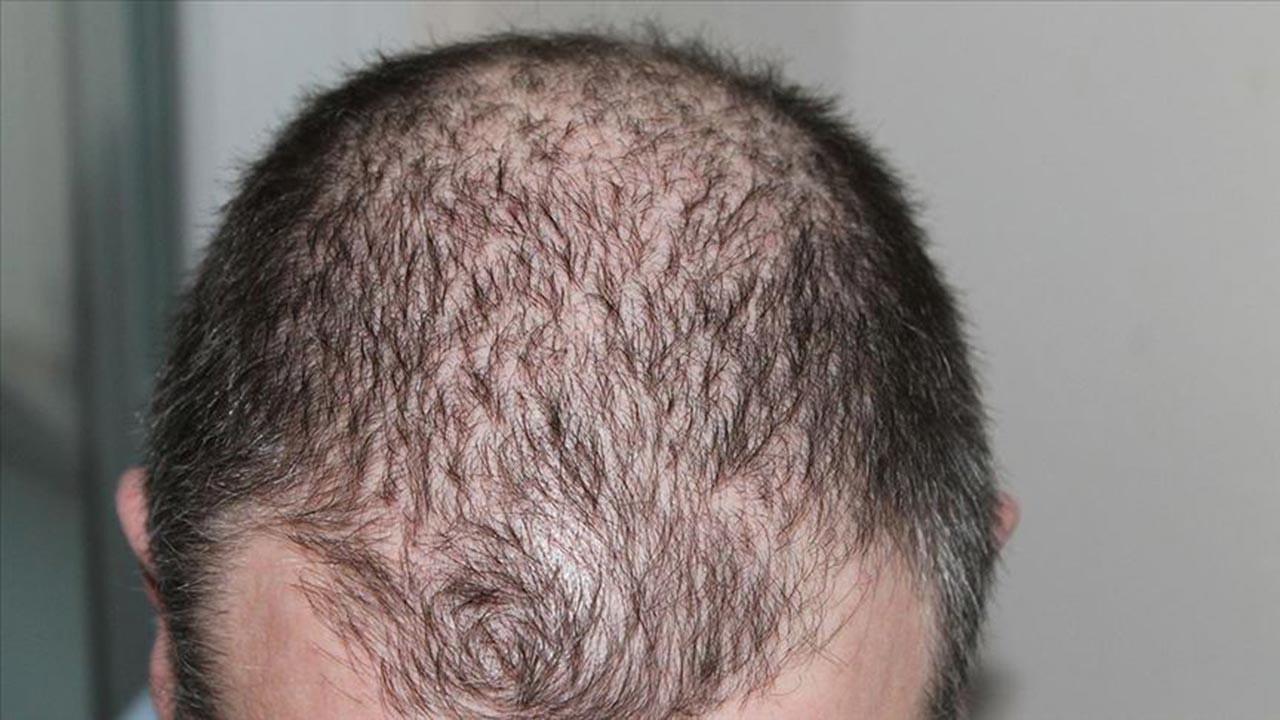 Saç dökülmesine karşı doğal öneriler