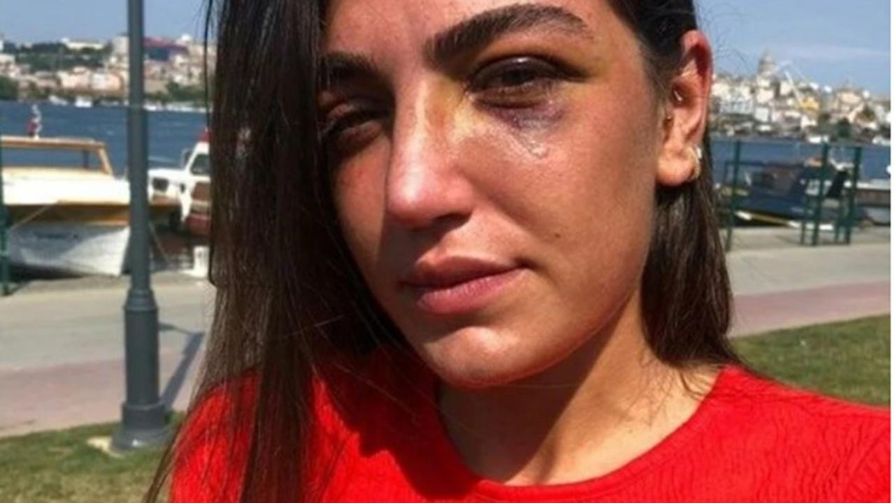 Kız arkadaşını darp eden şüpheli gözaltına alındı