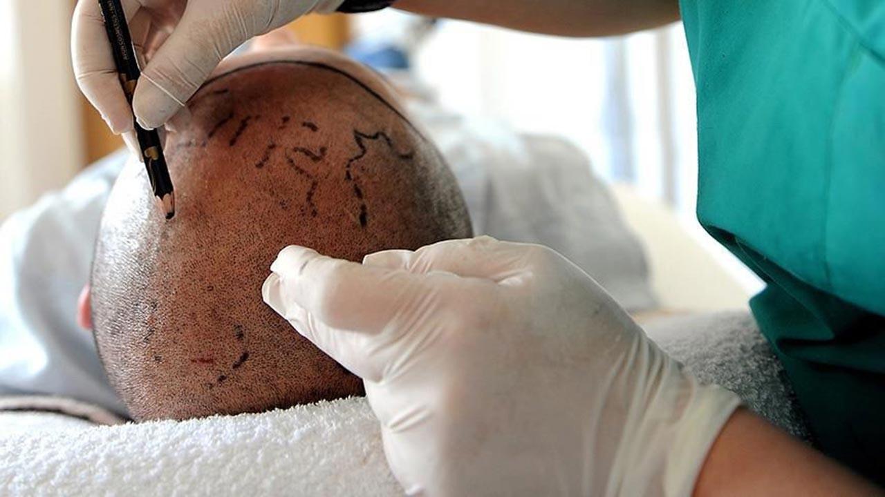Saç ekim merkezleri ile ilgili korkunç iddialar