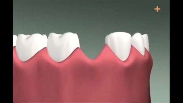 Diş implantı böyle yapılıyor
