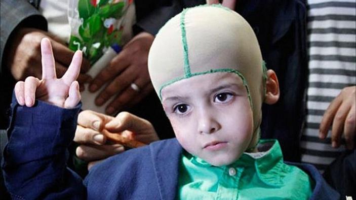 Yahudilerin yaktığı 5 yaşındaki Devabişe eve döndü