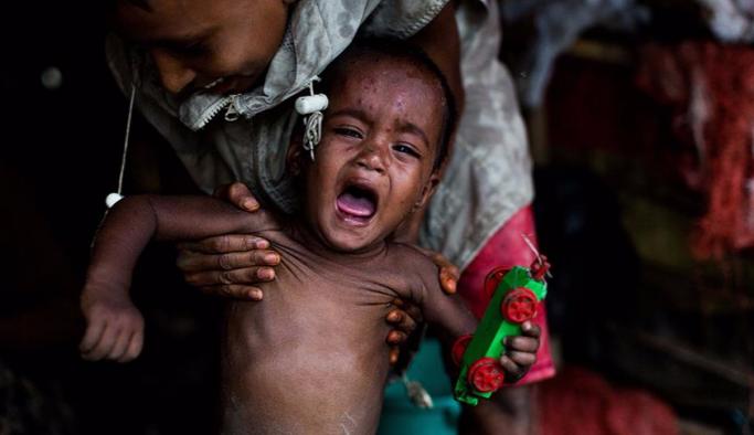 Myanmar'ın kuzeyinde kızamık salgını