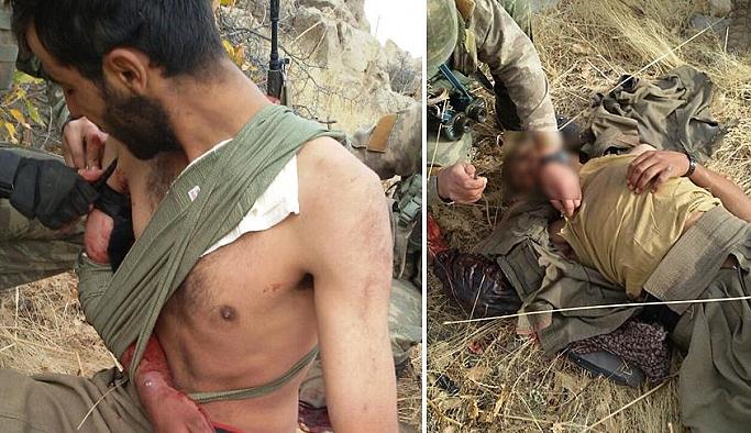 Yaralı teröriste ilk yardım, öldürmeye çalıştığı askerden