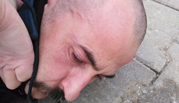 AK Parti'ye saldıran DHK-C'li yakalandı