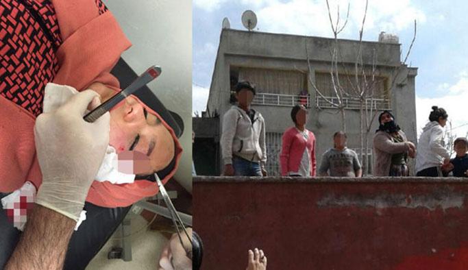 AK Partili kadınlara taşlı, sopalı saldırı