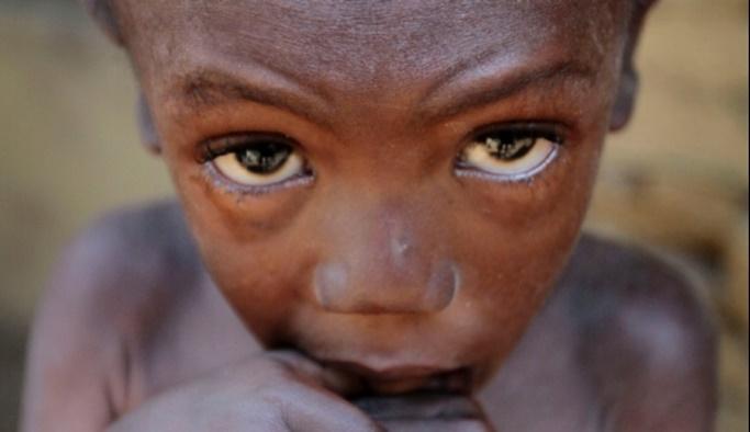 BM'den Nijerya için açlık uyarısı