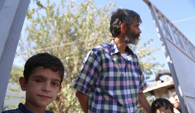 Suriyeli minik Mahmut istediği protez göze kavuşuyor