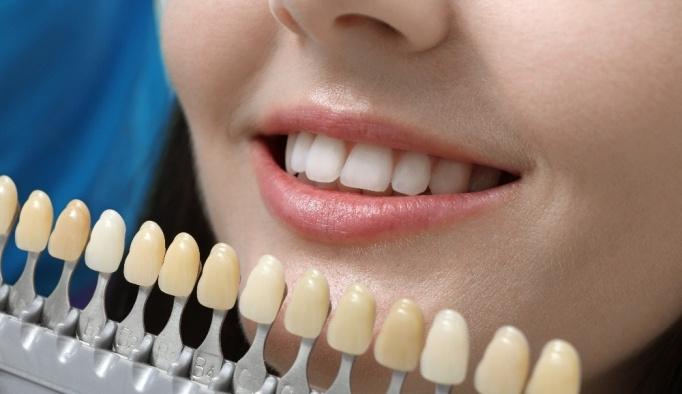 'Doğal dişin yerini hiçbir diş alamaz'