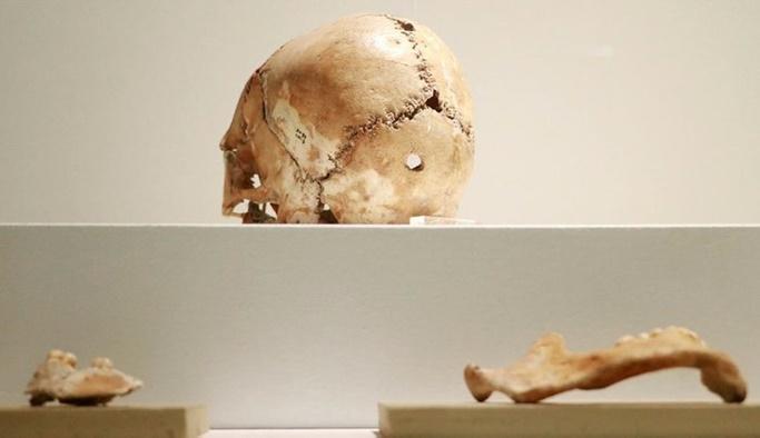 İlk beyin ameliyatı 11  bin yıl önce Aşıklı Höyük'te yapıldı