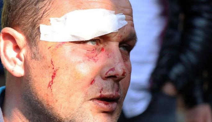 İhale için tehdit edilen nakliyeci feci şekilde dövüldü