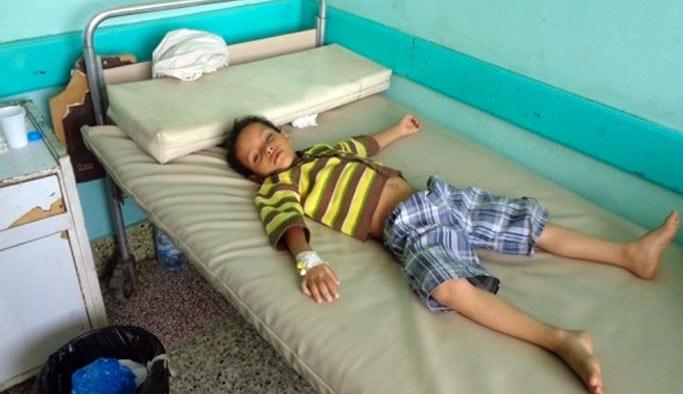 Yemen'de difteri salgını can almaya devam ediyor
