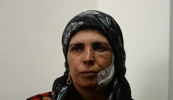Afrinli aileyi YPG/PKK mayını babasız bıraktı
