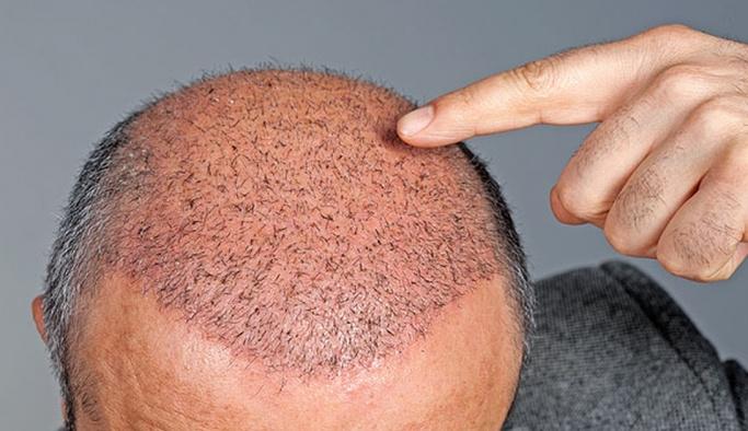 Saç ekimi fiyatları ne kadar? İstanbul, Ankara, İzmir Adres ve telefonları kaç?