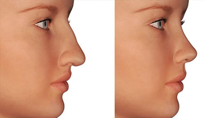 How much the price of rhinoplasty in Turkey?