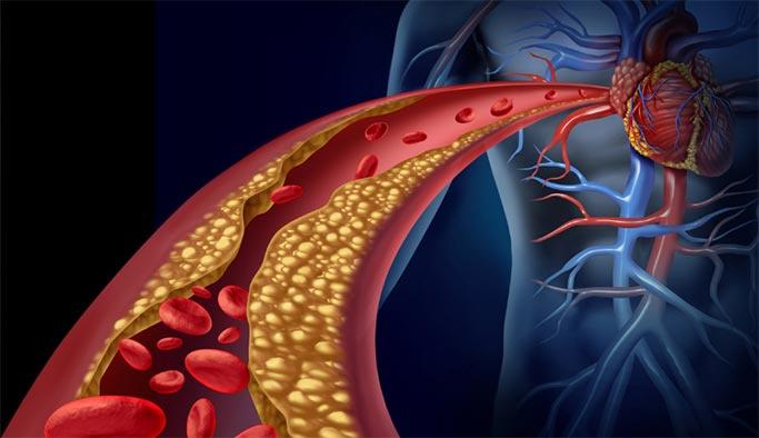 Kolesterol nedir, kolestrol tedavisi nasıl olur?