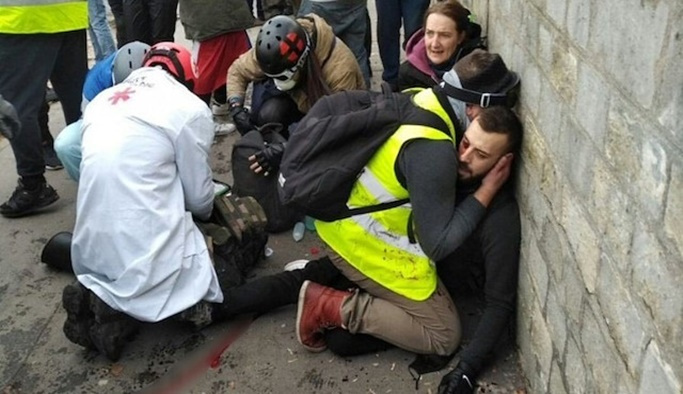Fransa'da polis şiddeti: Bir göstericinin eli koptu