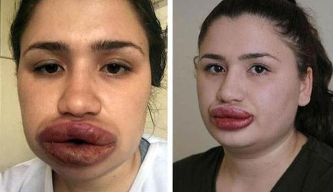 Üç kadını hastanelik eden sahte estetikçi firar etti