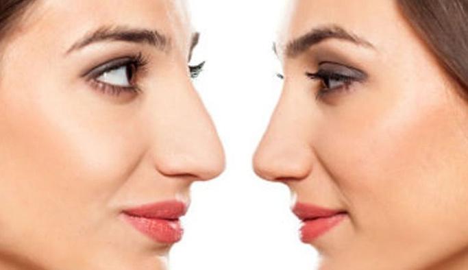 Yunan burnu nedir, estetik operasyonla düzelir mi?