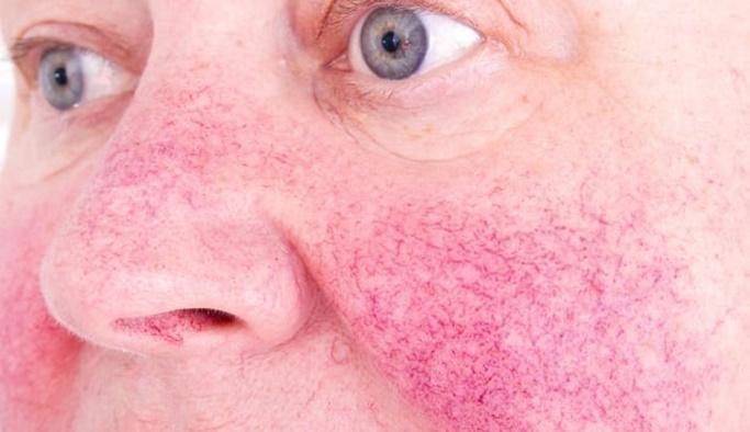 Gül hastalığı nedir, nasıl tedavi edilir?