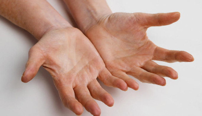 Sol elde, ellerde uyuşma neden olur?