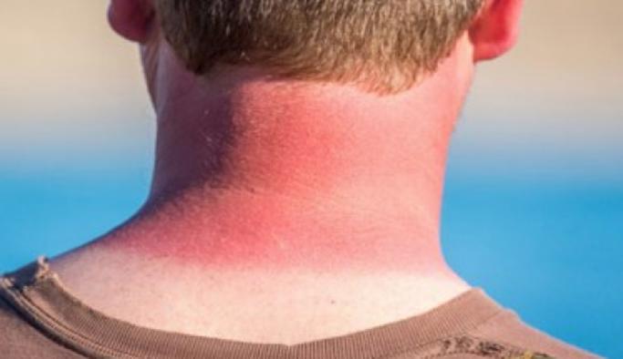 Güneş yanığı nasıl geçer? İşte doğal yöntemler