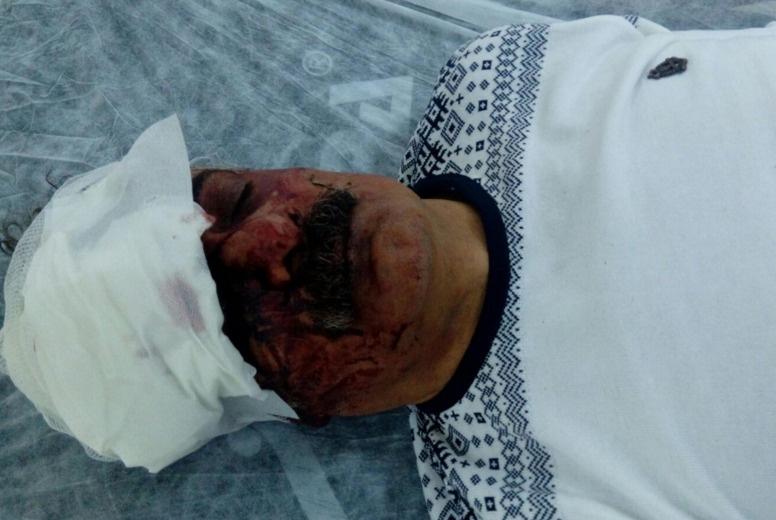 PKK aleyhinde konuşan sanatçıya saldırı