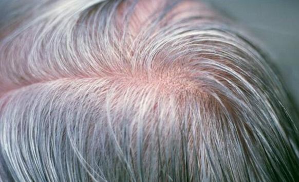 Saç beyazlama nedeni bulundu