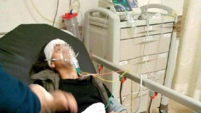 Sultangazi'de 14 Yaşındaki Kız Gaz Kapsülüyle Başından Yaralandı