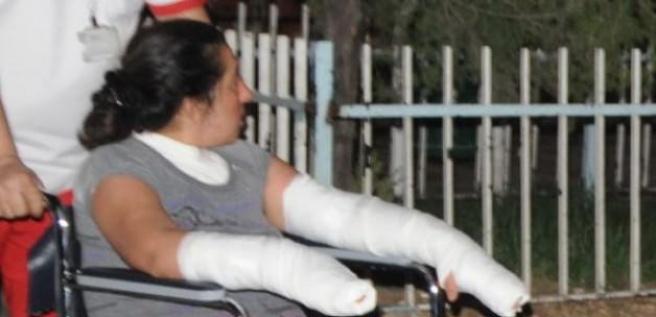Tyükseliştığı kadının kollarına kezzap attı